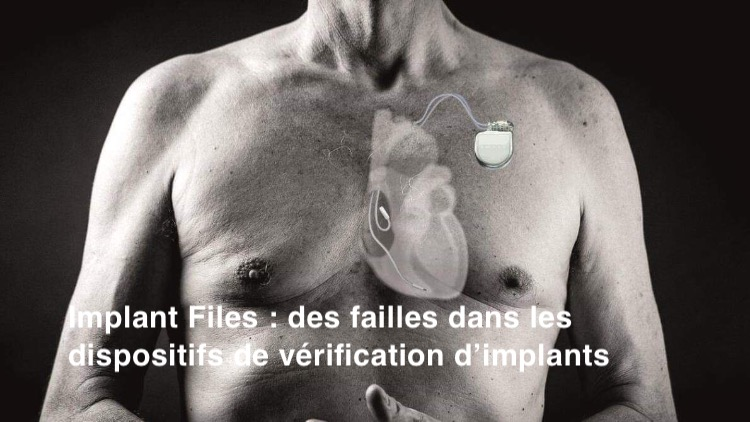 Loi. Implant Files: des failles dans les dispositifs de certification